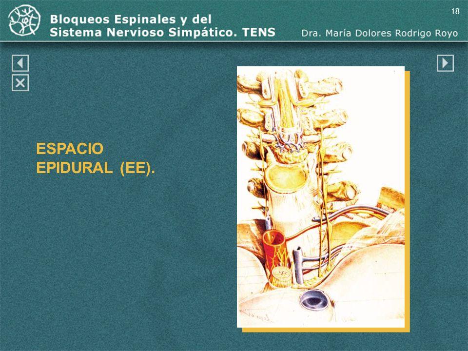 18 ESPACIO EPIDURAL (EE). Espacio epidural (EE).