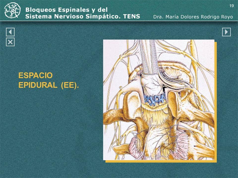19 ESPACIO EPIDURAL (EE). Espacio epidural (EE).