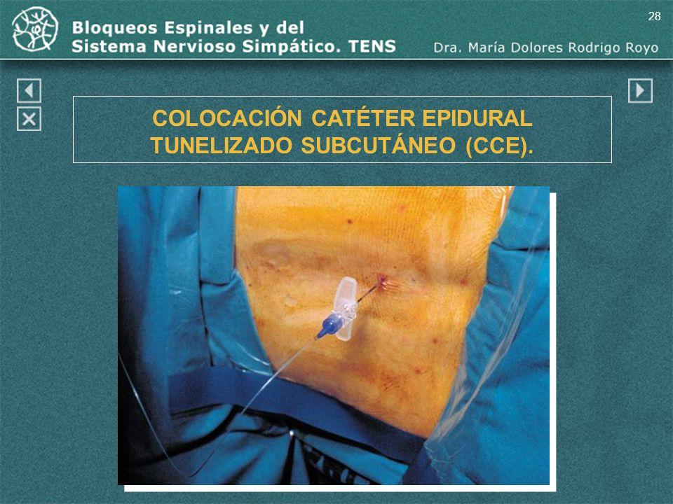 COLOCACIÓN CATÉTER EPIDURAL TUNELIZADO SUBCUTÁNEO (CCE).