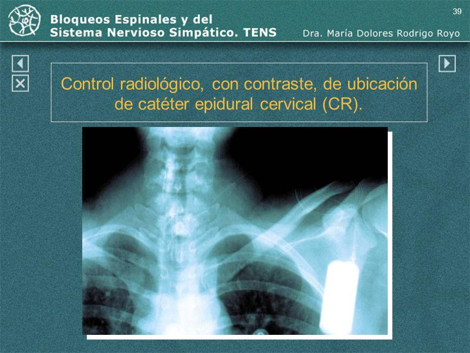 39 Control radiológico, con contraste, de ubicación de catéter epidural cervical (CR). (CR)