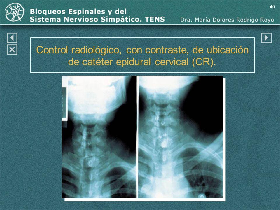 40 Control radiológico, con contraste, de ubicación de catéter epidural cervical (CR). (CR)