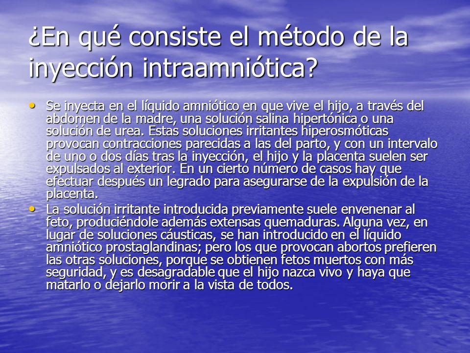 ¿En qué consiste el método de la inyección intraamniótica