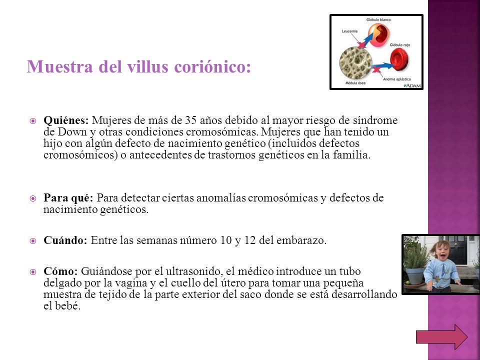 Muestra del villus coriónico: