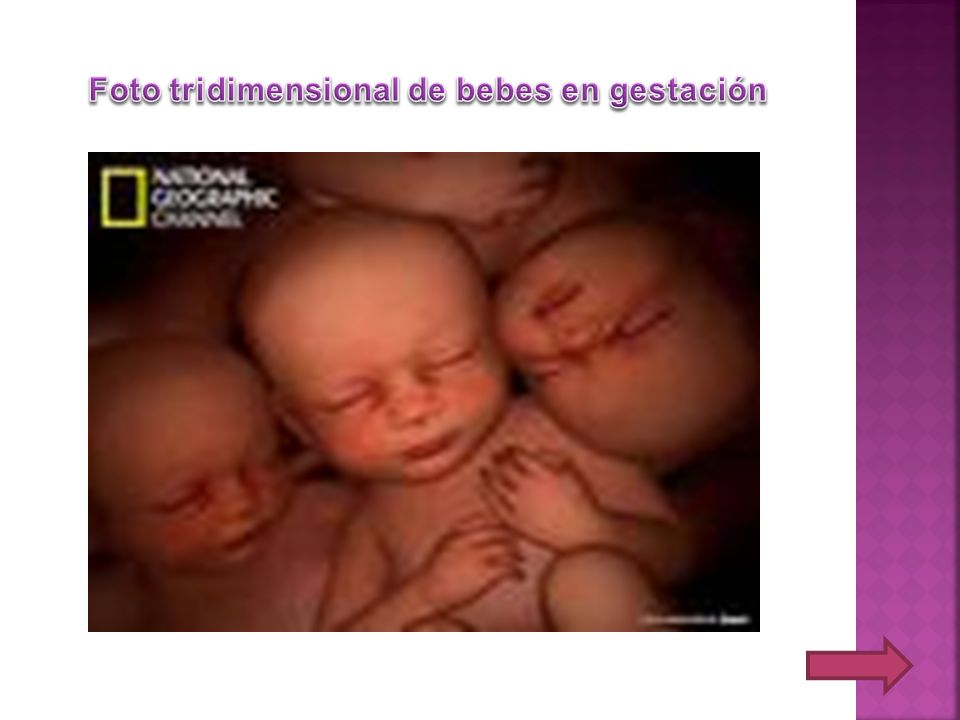Foto tridimensional de bebes en gestación