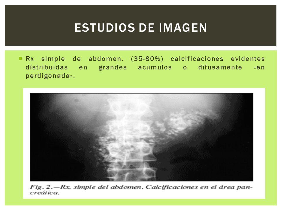 ESTUDIOS DE IMAGEN Rx simple de abdomen.