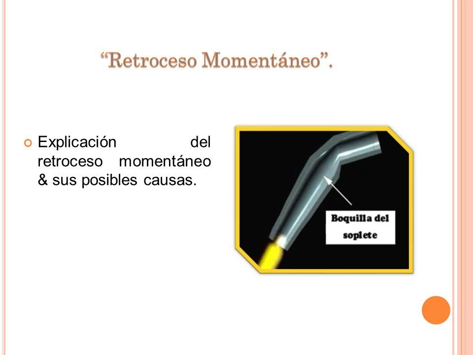 ''Retroceso Momentáneo''.