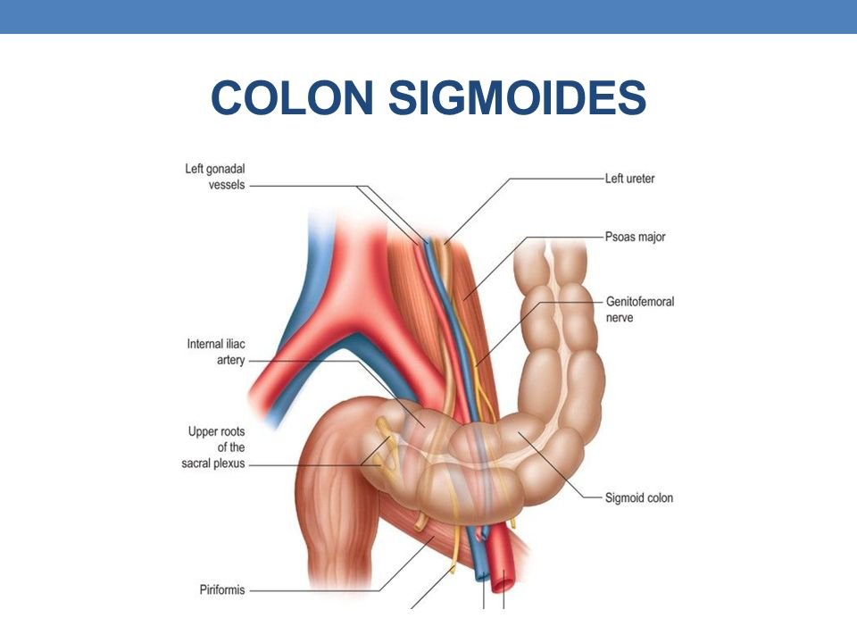 COLON SIGMOIDES