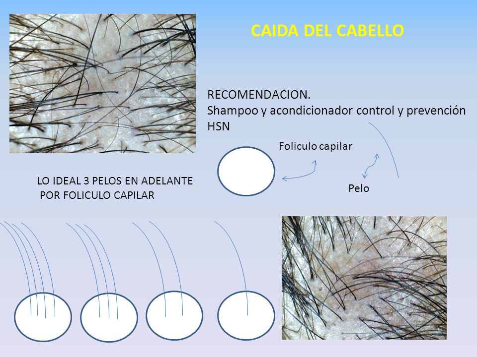 CAIDA DEL CABELLO RECOMENDACION.
