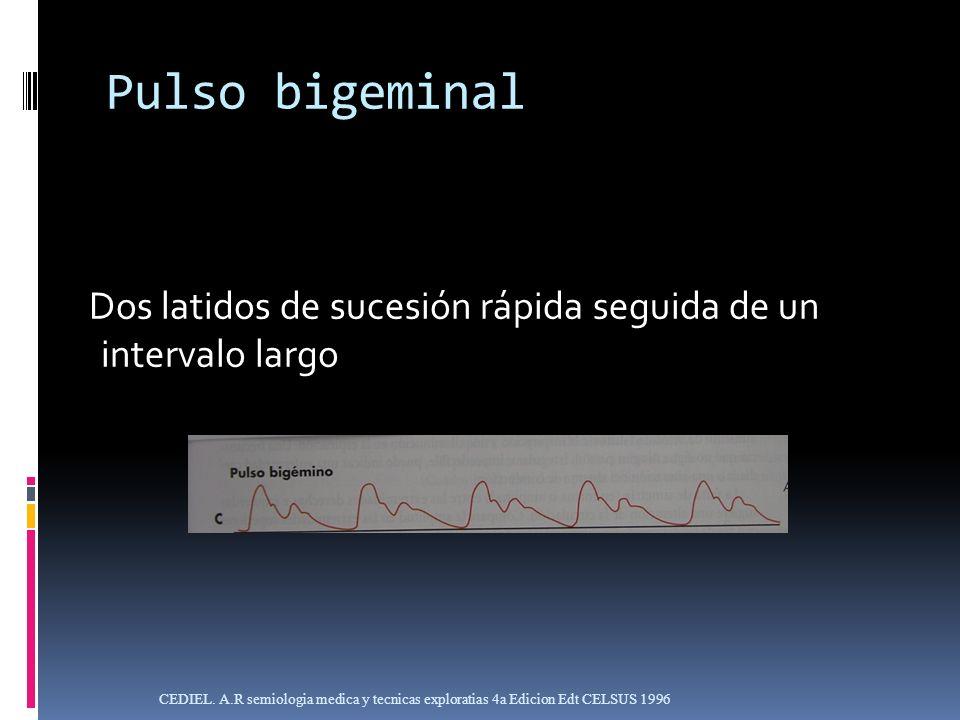 Pulso bigeminalDos latidos de sucesión rápida seguida de un intervalo largo.