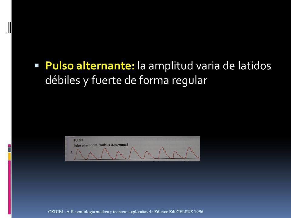 Pulso alternante: la amplitud varia de latidos débiles y fuerte de forma regular