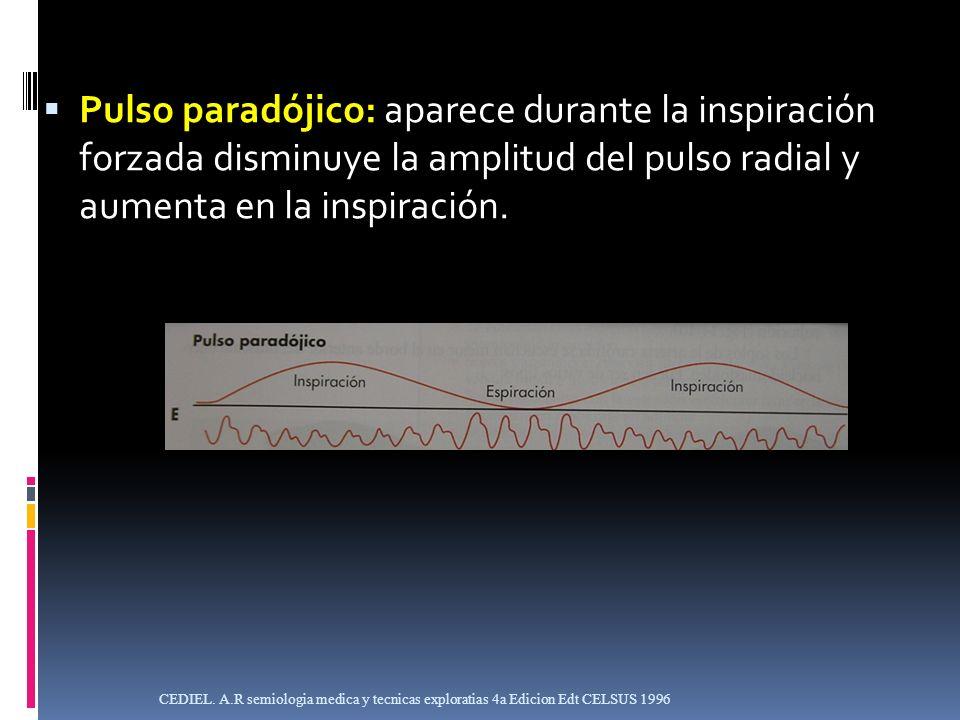 Pulso paradójico: aparece durante la inspiración forzada disminuye la amplitud del pulso radial y aumenta en la inspiración.