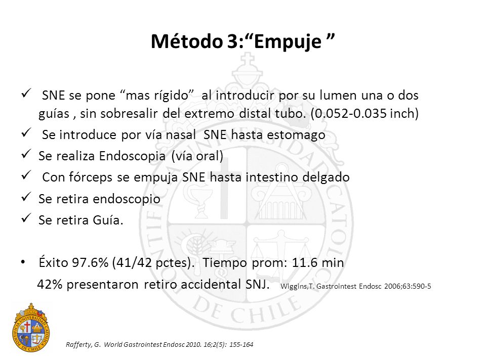 Método 3: Empuje SNE se pone mas rígido al introducir por su lumen una o dos guías , sin sobresalir del extremo distal tubo. (0.052-0.035 inch)
