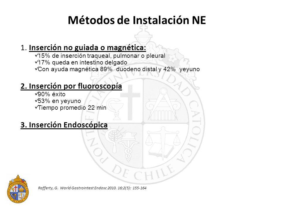 Métodos de Instalación NE