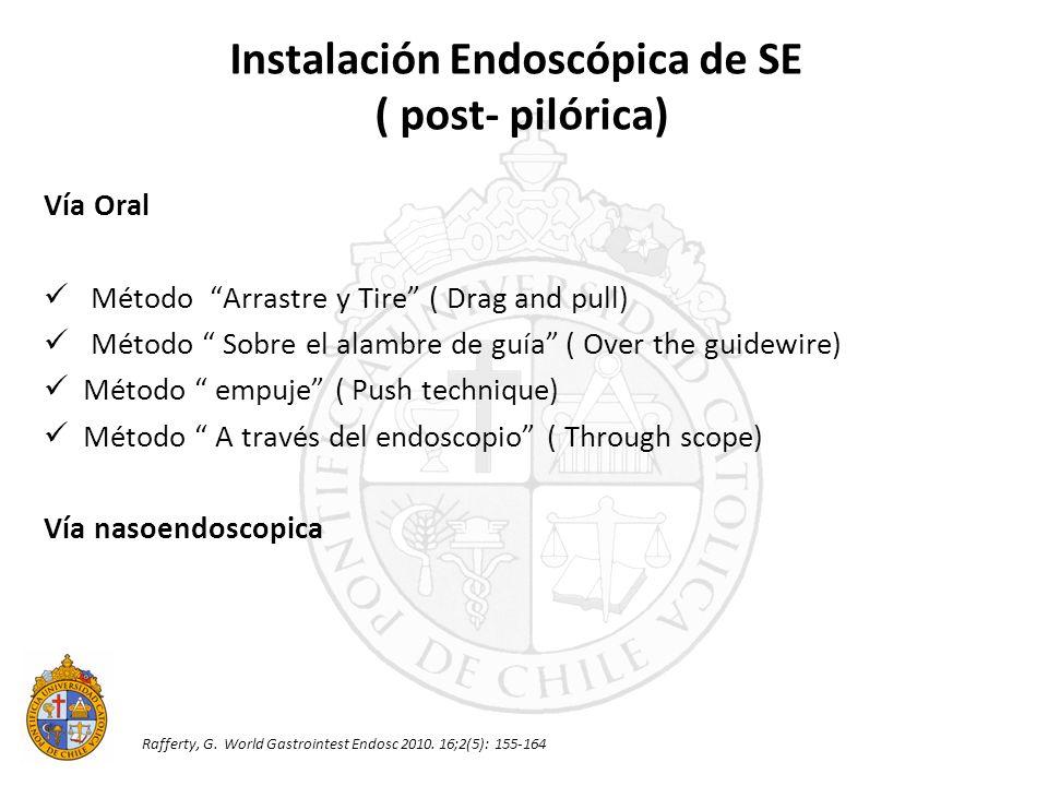 Instalación Endoscópica de SE
