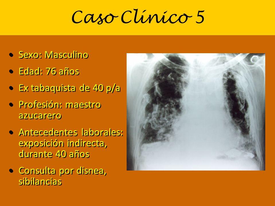 Caso Clínico 5 Sexo: Masculino Edad: 76 años Ex tabaquista de 40 p/a