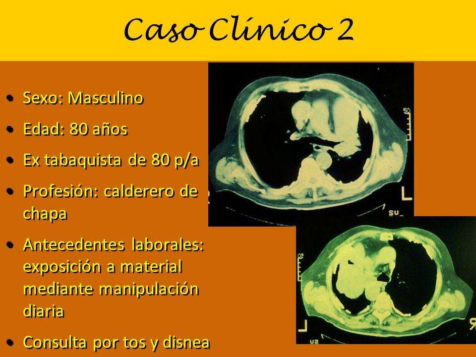 Caso Clínico 2 Sexo: Masculino Edad: 80 años Ex tabaquista de 80 p/a