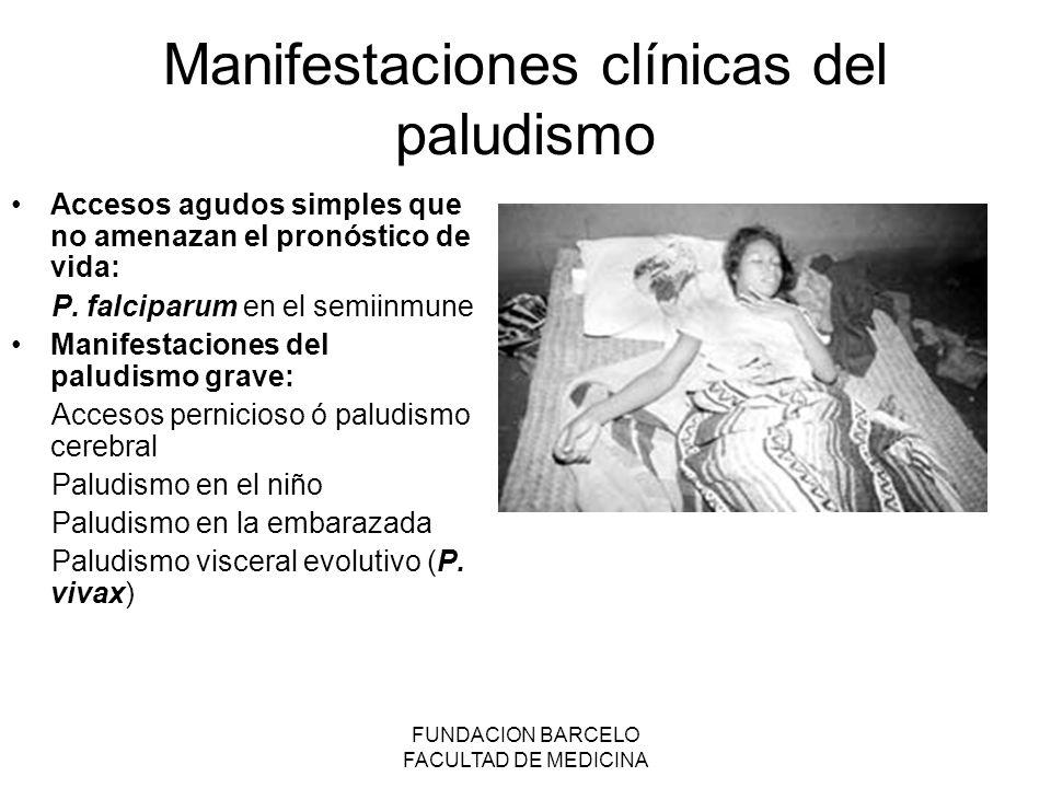 Manifestaciones clínicas del paludismo