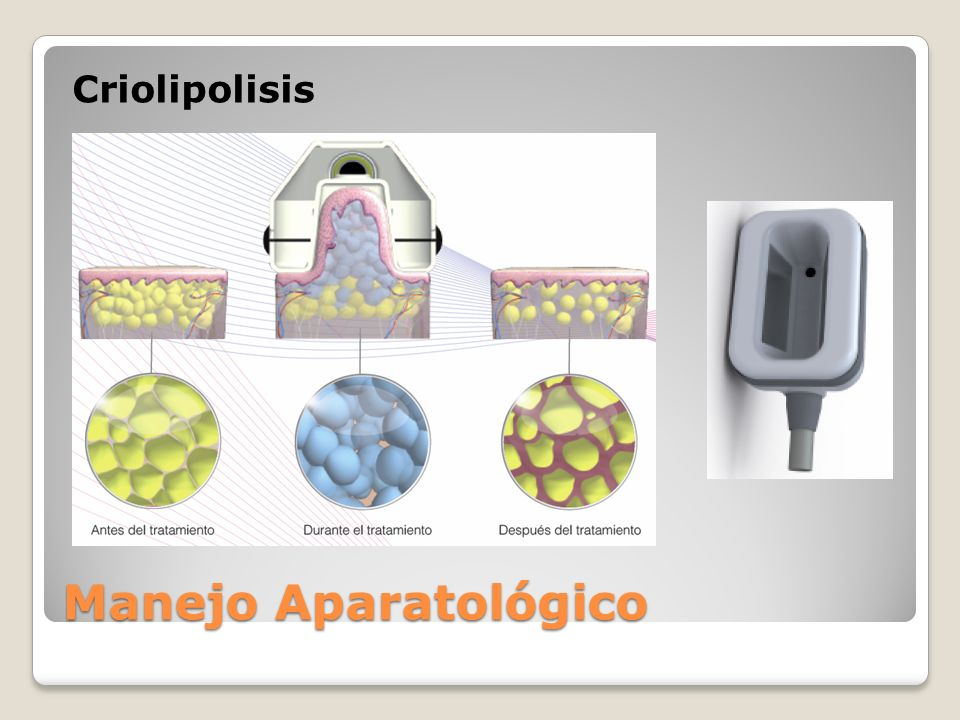 Criolipolisis Manejo Aparatológico