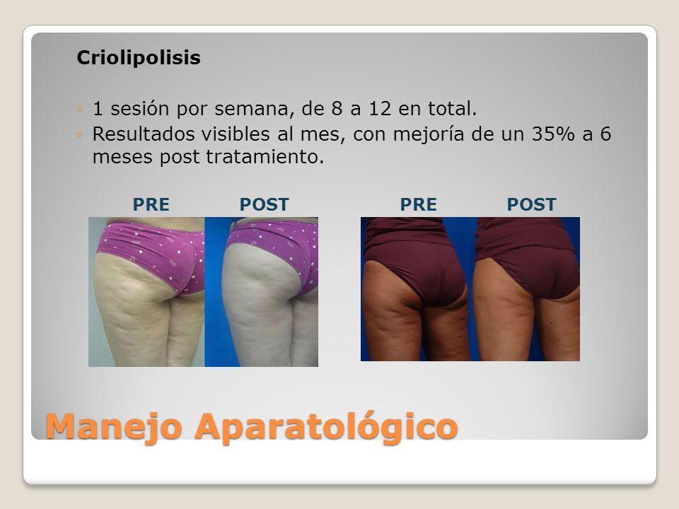 Manejo Aparatológico Criolipolisis