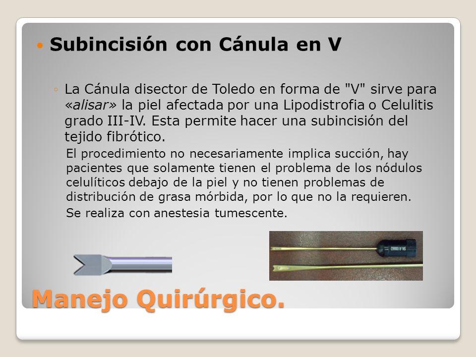 Manejo Quirúrgico. Subincisión con Cánula en V
