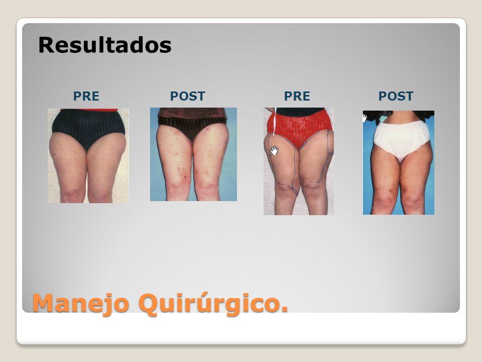 Resultados PRE POST PRE POST Manejo Quirúrgico.