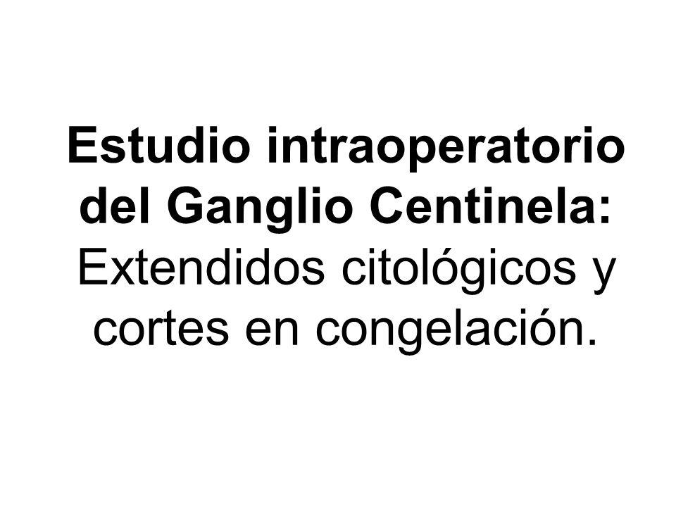 Estudio intraoperatorio del Ganglio Centinela: