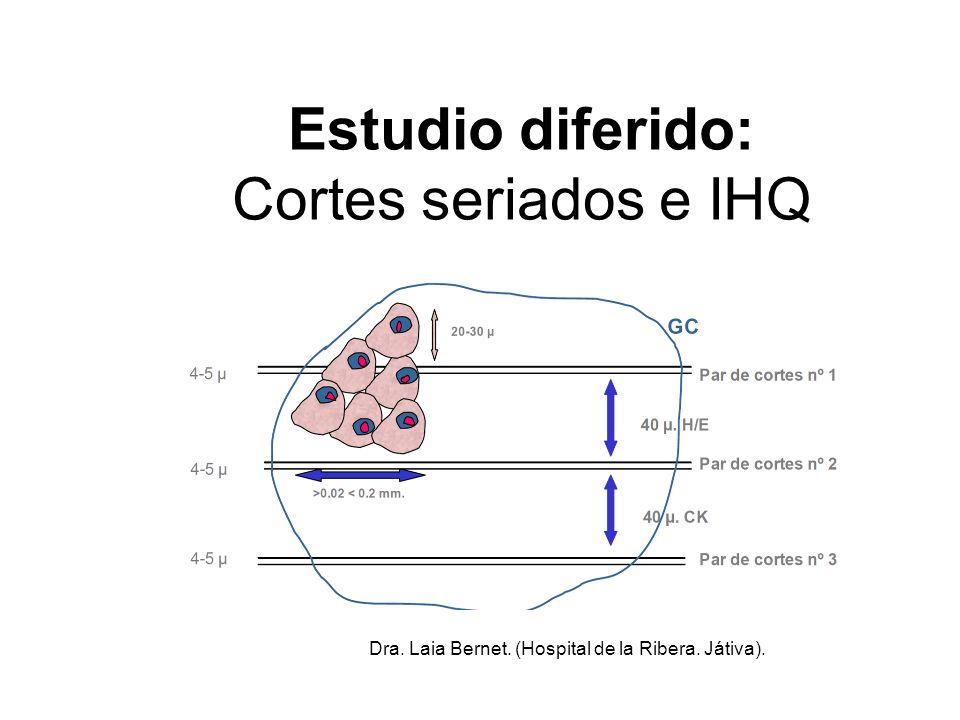 Estudio diferido: Cortes seriados e IHQ
