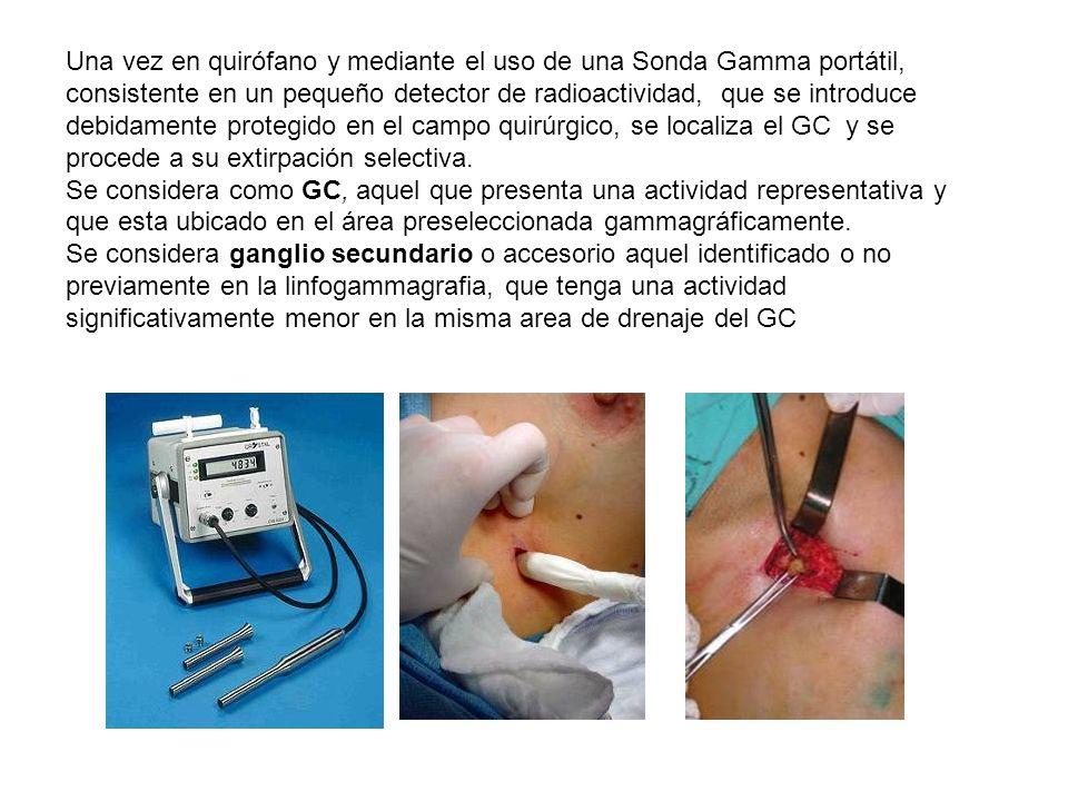Una vez en quirófano y mediante el uso de una Sonda Gamma portátil, consistente en un pequeño detector de radioactividad, que se introduce debidamente protegido en el campo quirúrgico, se localiza el GC y se procede a su extirpación selectiva.