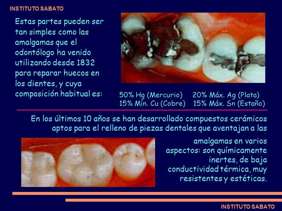 Estas partes pueden ser tan simples como las amalgamas que el odontólogo ha venido utilizando desde 1832 para reparar huecos en los dientes, y cuya composición habitual es:
