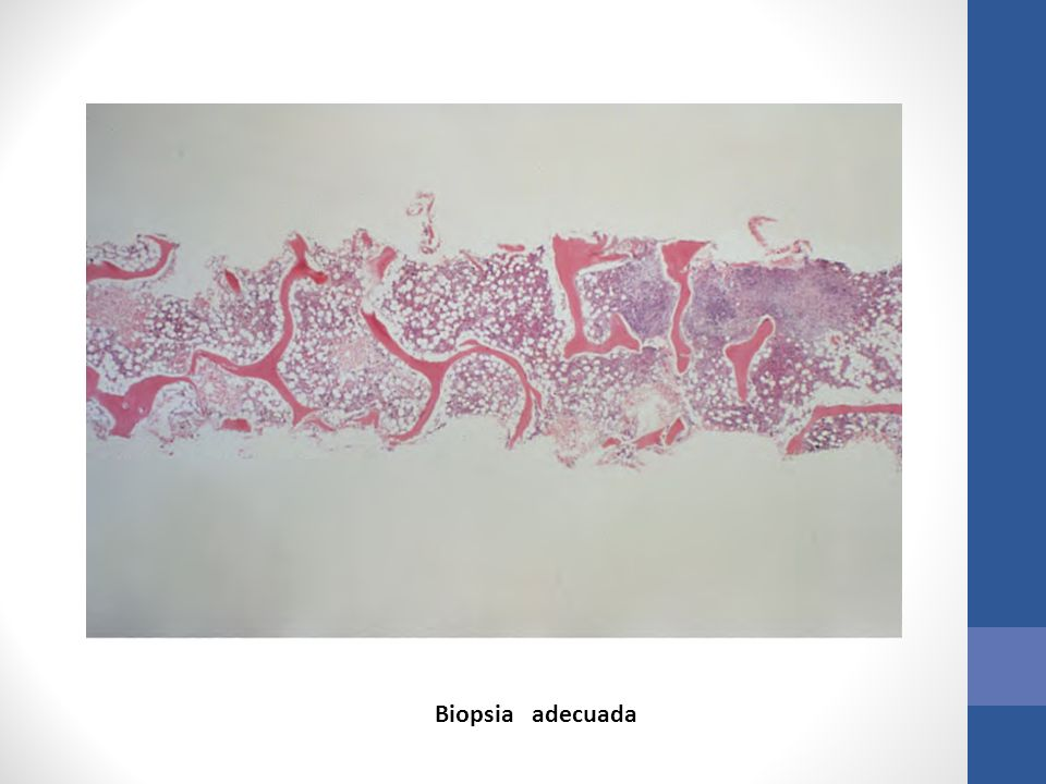 Biopsia adecuada