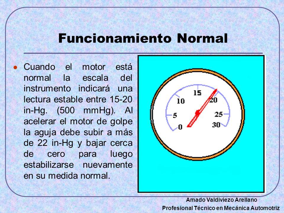 Funcionamiento Normal