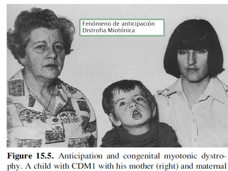 Fenómeno de anticipación Distrofia Miotónica