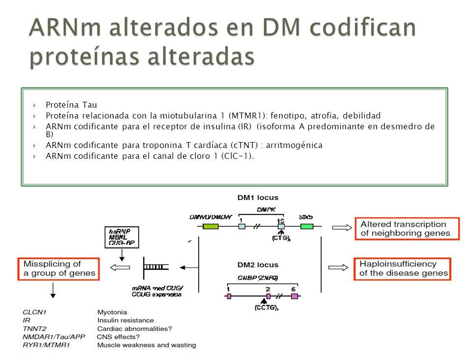 ARNm alterados en DM codifican proteínas alteradas