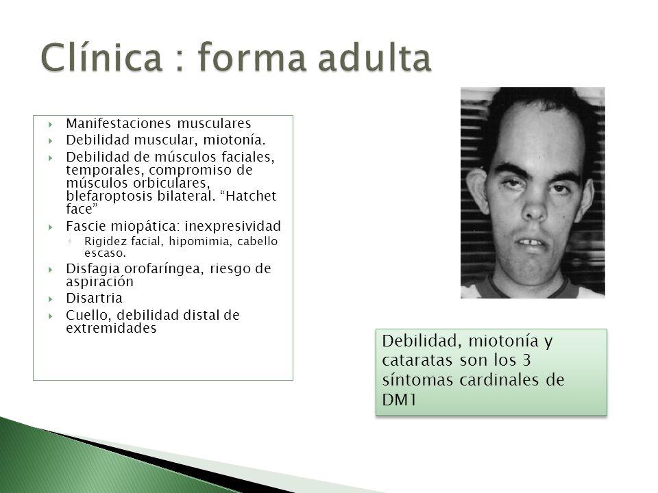 Clínica : forma adulta Manifestaciones musculares. Debilidad muscular, miotonía.