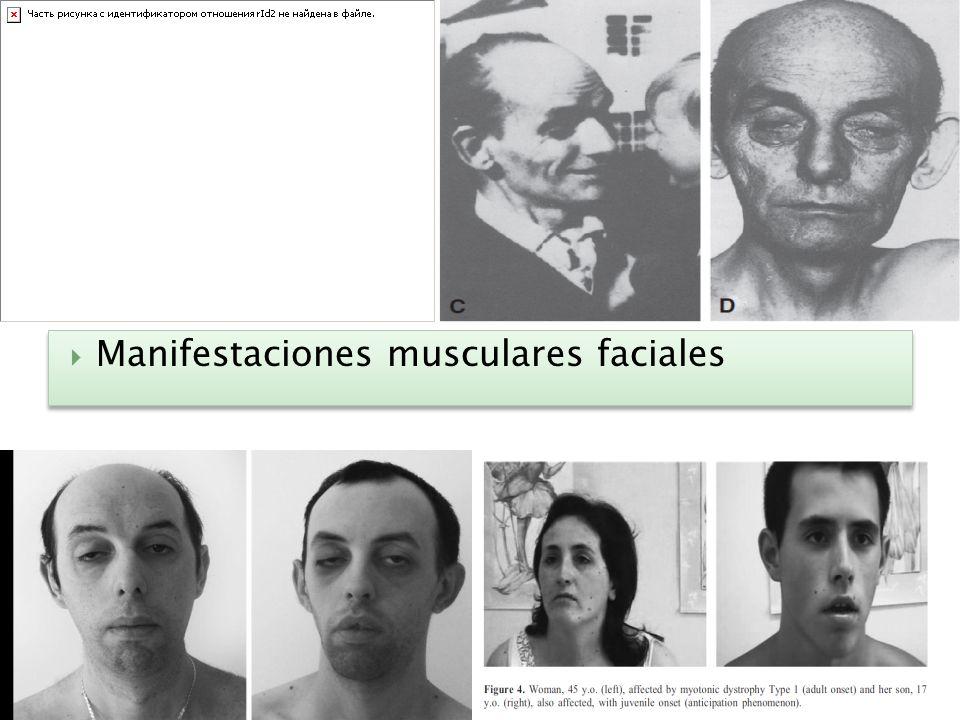 Manifestaciones musculares faciales