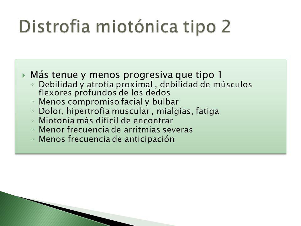 Distrofia miotónica tipo 2
