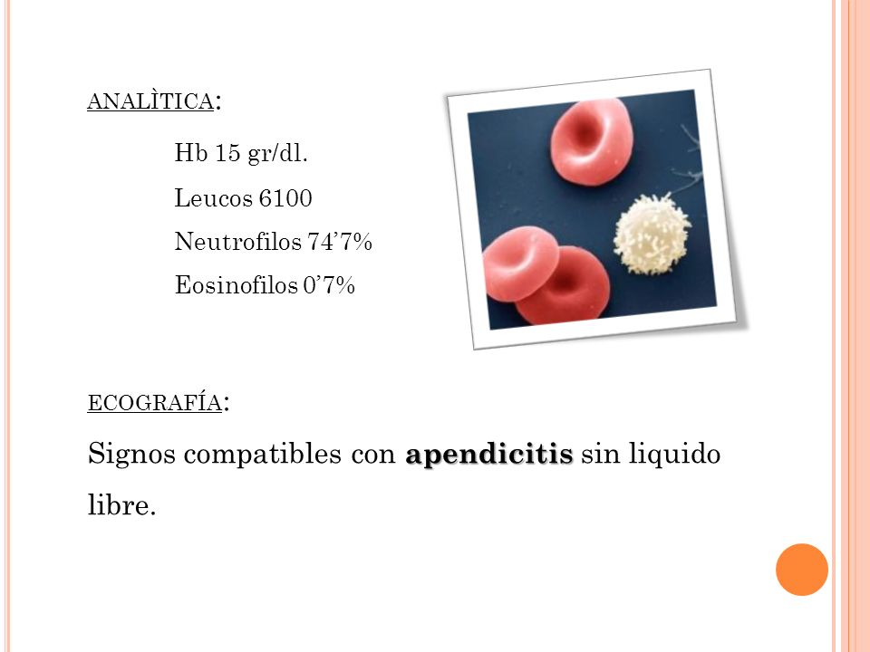 Signos compatibles con apendicitis sin liquido libre.