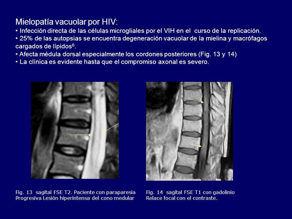 Mielopatía vacuolar por HIV: