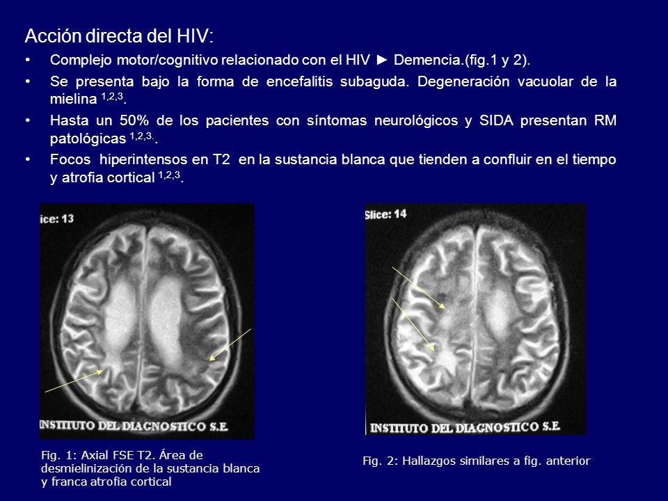 Acción directa del HIV: