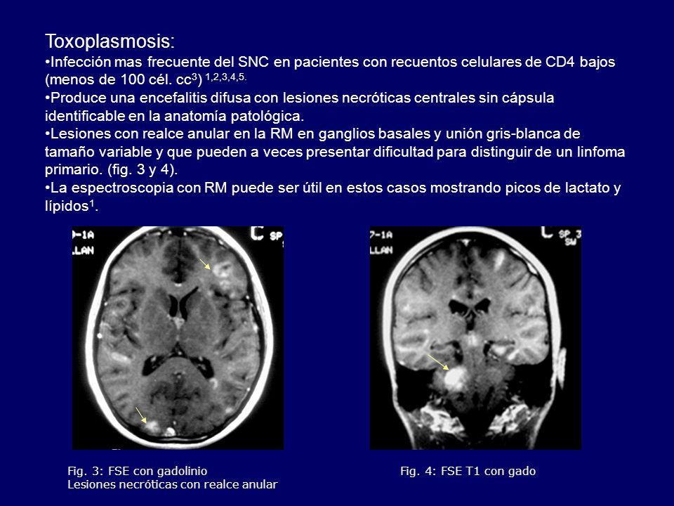 Toxoplasmosis: Infección mas frecuente del SNC en pacientes con recuentos celulares de CD4 bajos (menos de 100 cél. cc3) 1,2,3,4,5.