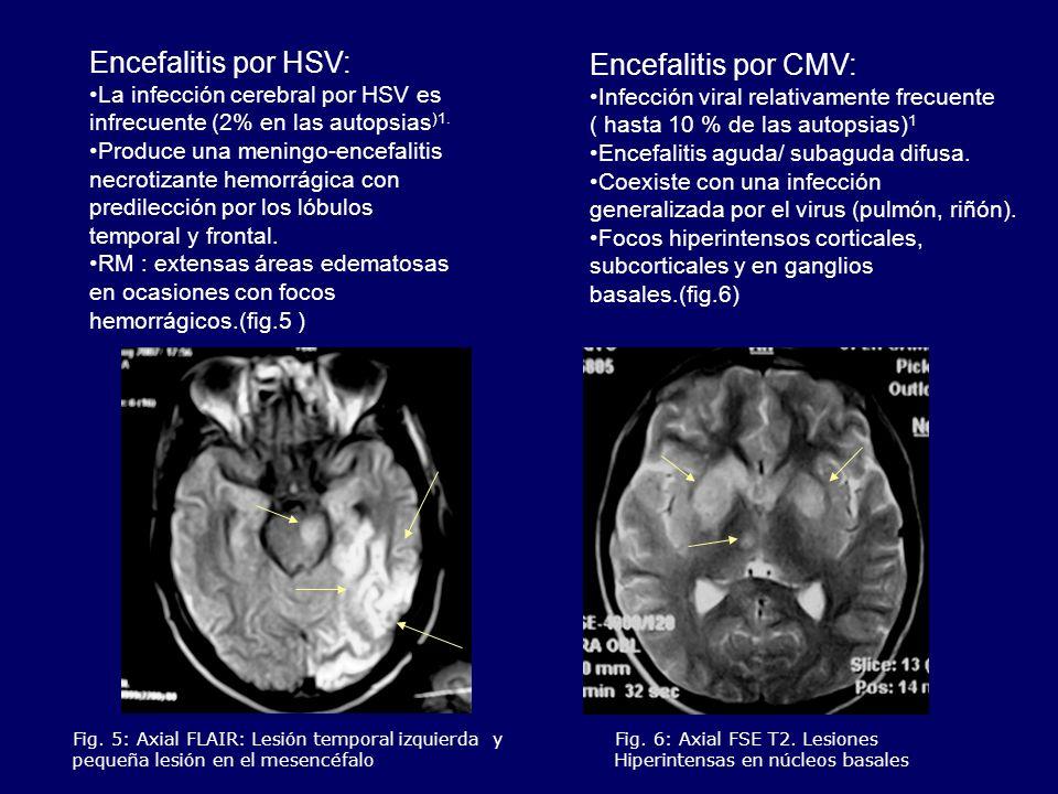 Encefalitis por HSV: Encefalitis por CMV:
