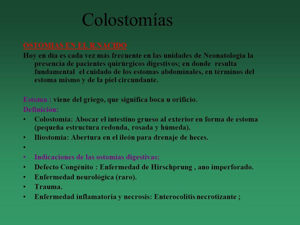 Colostomías OSTOMIAS EN EL R.NACIDO
