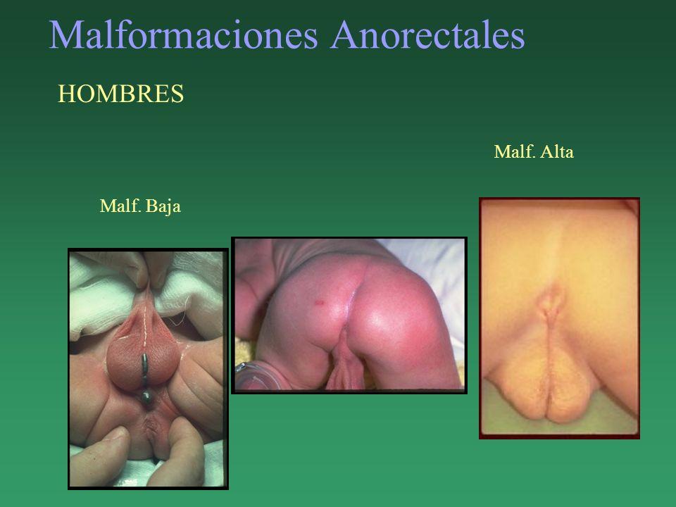 Malformaciones Anorectales