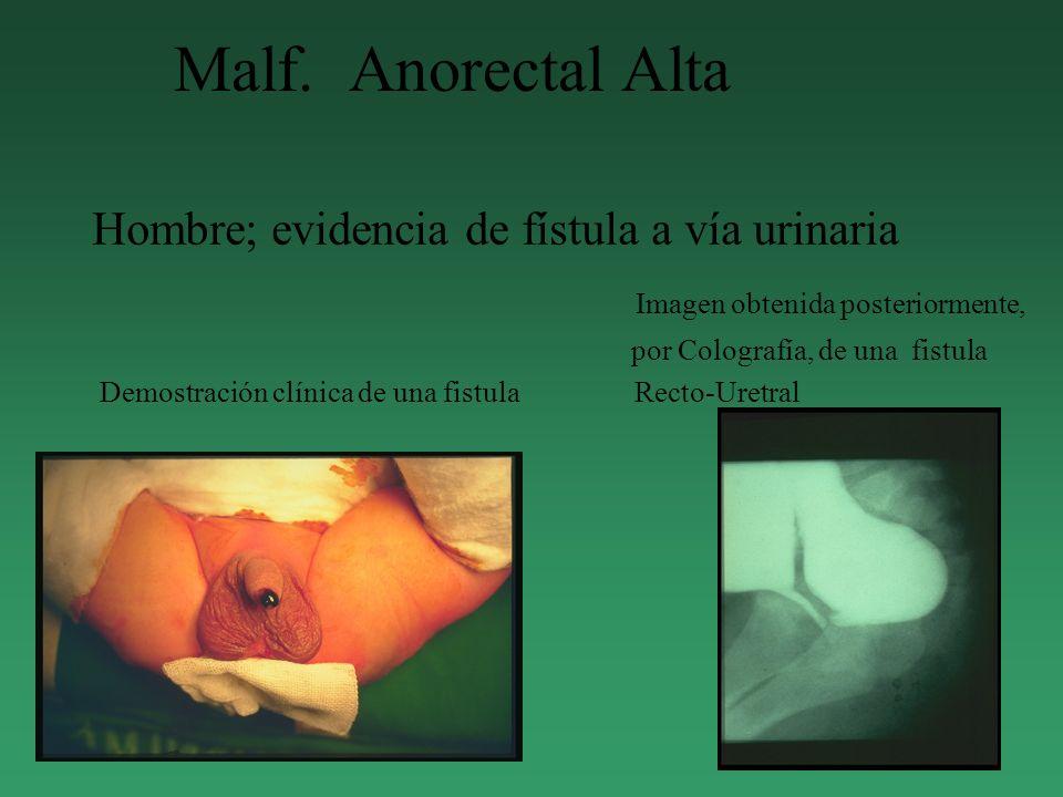 Malf. Anorectal Alta Hombre; evidencia de fístula a vía urinaria