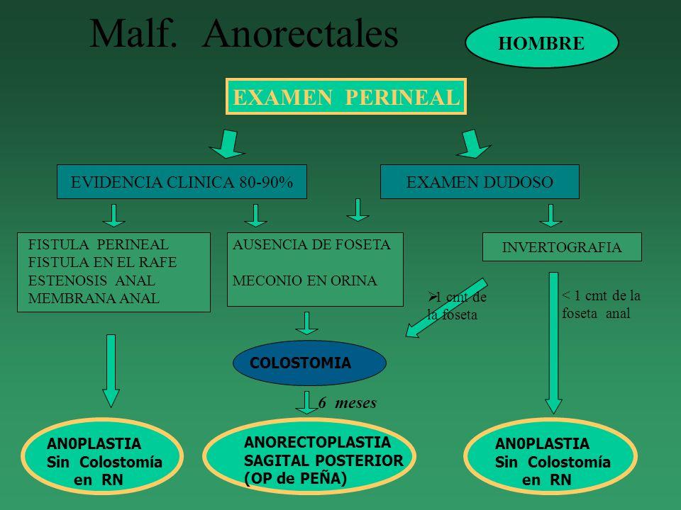 Malf. Anorectales EXAMEN PERINEAL HOMBRE EVIDENCIA CLINICA 80-90%