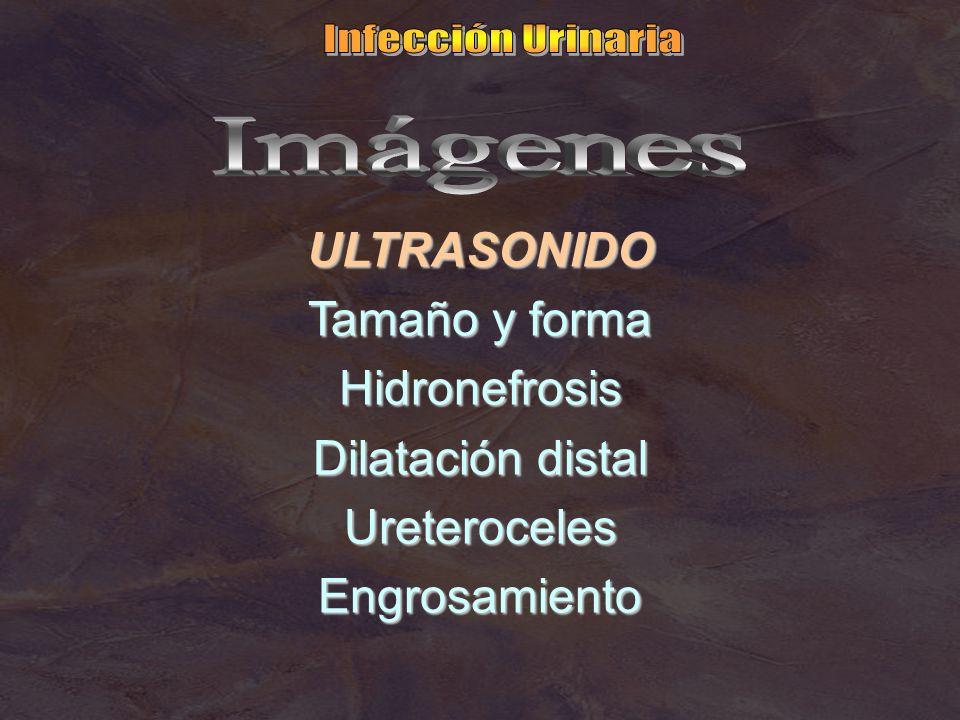 Infección Urinaria Imágenes. ULTRASONIDO. Tamaño y forma. Hidronefrosis. Dilatación distal. Ureteroceles.