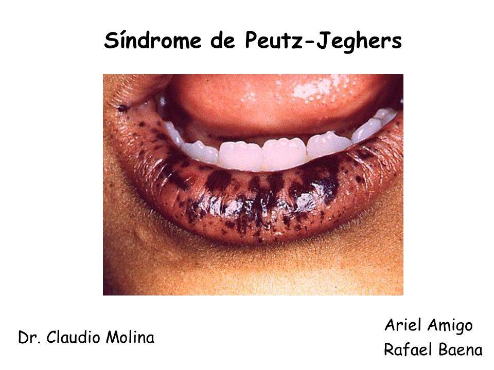 Síndrome de Peutz-Jeghers