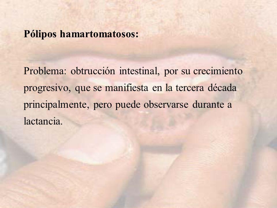 Pólipos hamartomatosos:
