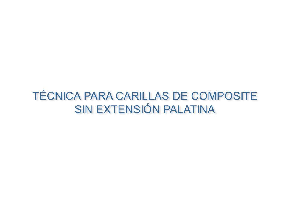 TÉCNICA PARA CARILLAS DE COMPOSITE SIN EXTENSIÓN PALATINA