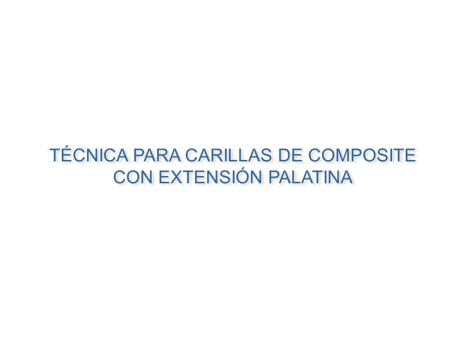 TÉCNICA PARA CARILLAS DE COMPOSITE CON EXTENSIÓN PALATINA